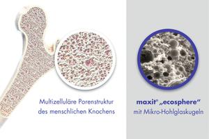 Bei der Entwicklung von Ecosphere orientierte sich Maxit am Beispiel der Natur, die Überdimensionierung stets vermeidet. So diente etwa der Aufbau menschlicher Knochen, die aus idealen, multizellulären Porenstrukturen bestehen, als Vorbild.